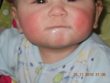 Красный подбородок у ребенка