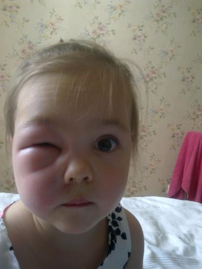 Укус комара!Лицо отекло-глазика не видно вообще!